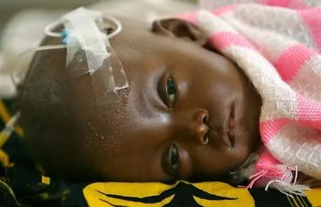 Child suffering from malaria. Seattle Times, February 1, 2008