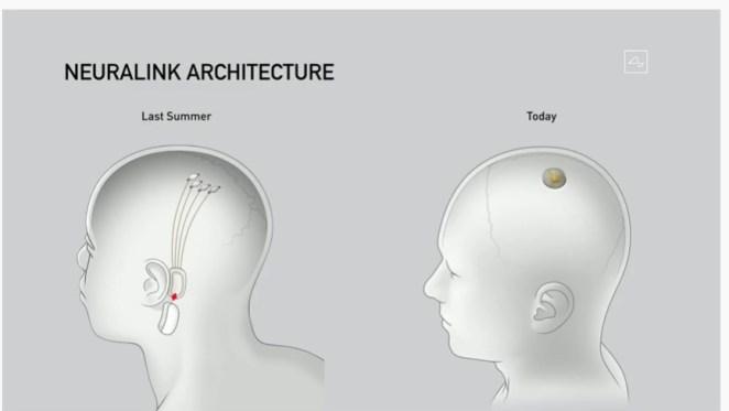 elon musk neuralink canlı yayın