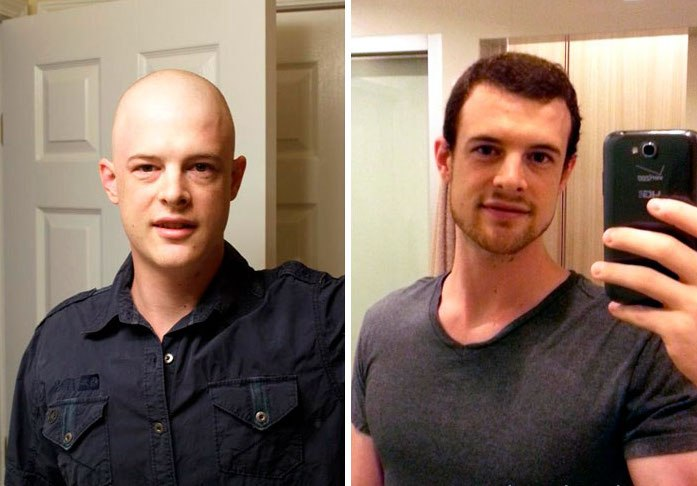 NTD Before After Pics Of People Who Beat Cancer6 -