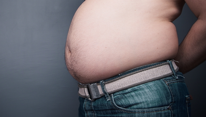 Overweight studio shot.