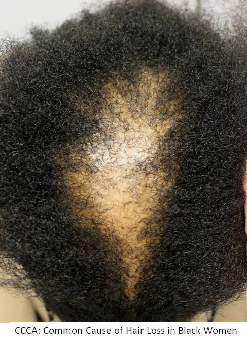 Hair Loss In Black Women CCCA Hair Transplant Toronto