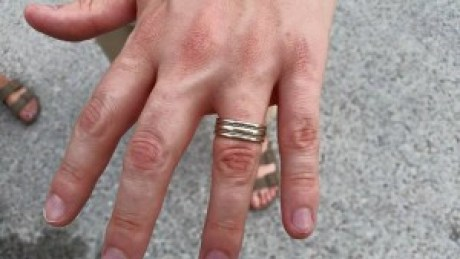 Honeymoon Ring 2