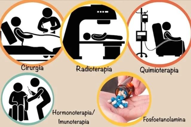 Câncer: Sinais e sintomas que deve ficar atento