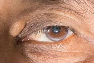 Xantelasma en el ojo