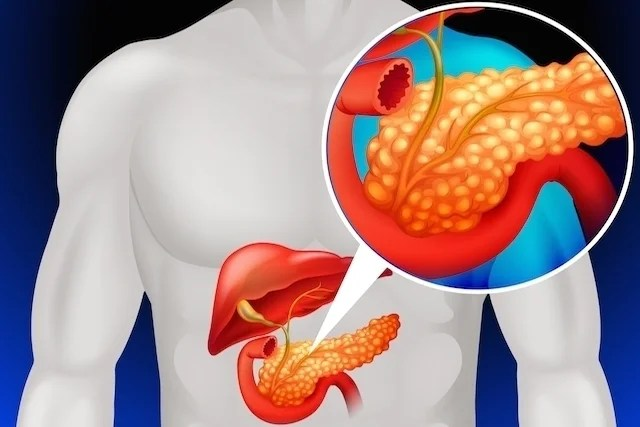 How to know if it's pain in the pancreas, what it can be and what it does