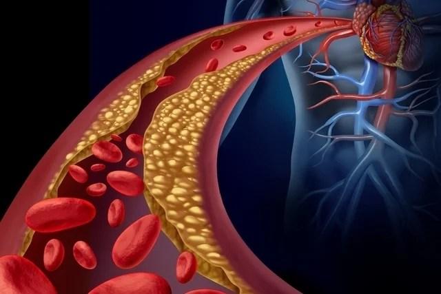 O que é colesterol total e como baixar