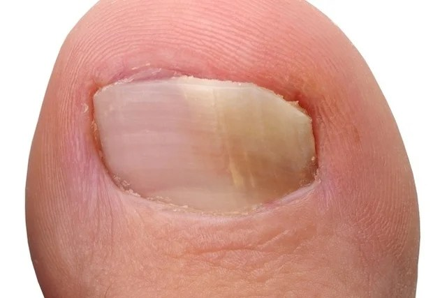7 types of skin mycosis and how to treat