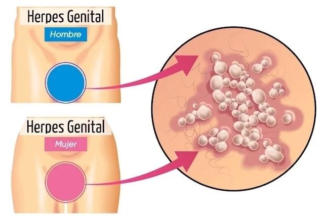 Aprenda a reconocer los síntomas del herpes