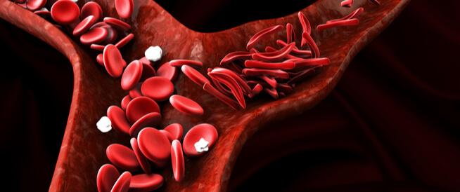 ما هي أسباب فقر الدم المتكرر ويب طب