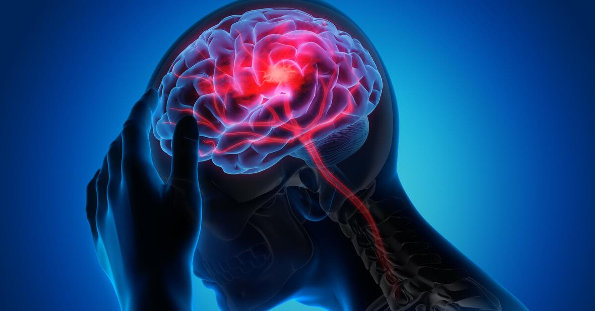 اثار الجلطة الدماغية ويب طب
