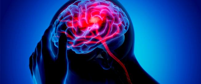 ما هي أعراض الجلطة الدماغية والغيبوبة ويب طب