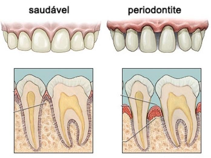 Resultado de imagem para doença periodontal