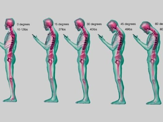 spine damage from texting