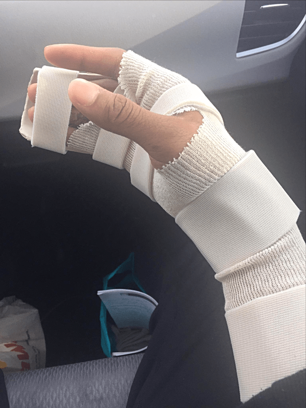 hand in a cast