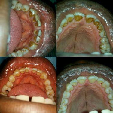 kola nut and the dentist
