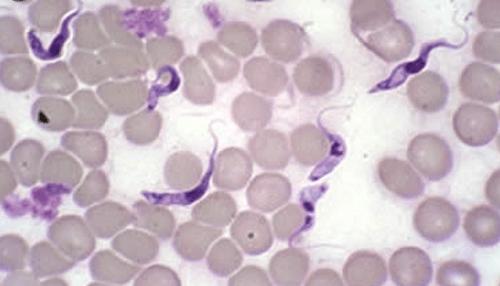 A Live Blood pHase Contrast Microscopy Micrograph of Trypanosoma  cruzi Parasite[8]