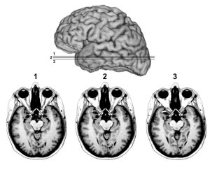 Humans, Like Animals, Are Fearless Without Amygdala  The