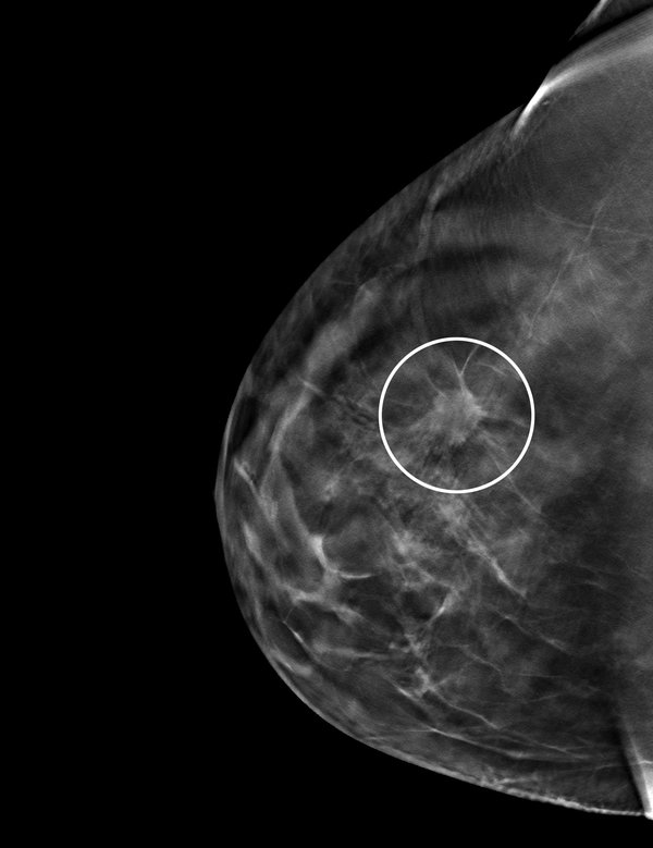 Mammogram Results How Long Get Results
