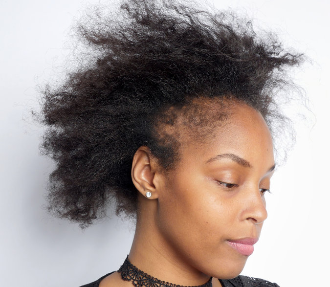 Skin Deep What Black Women Need To Know About Hair Loss