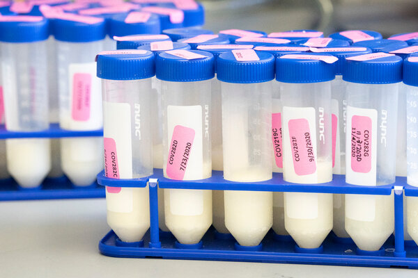 A recent analysis of breast milk from women who had received Covid-19 vaccines found significant numbers of IgG antibodies in all the samples.