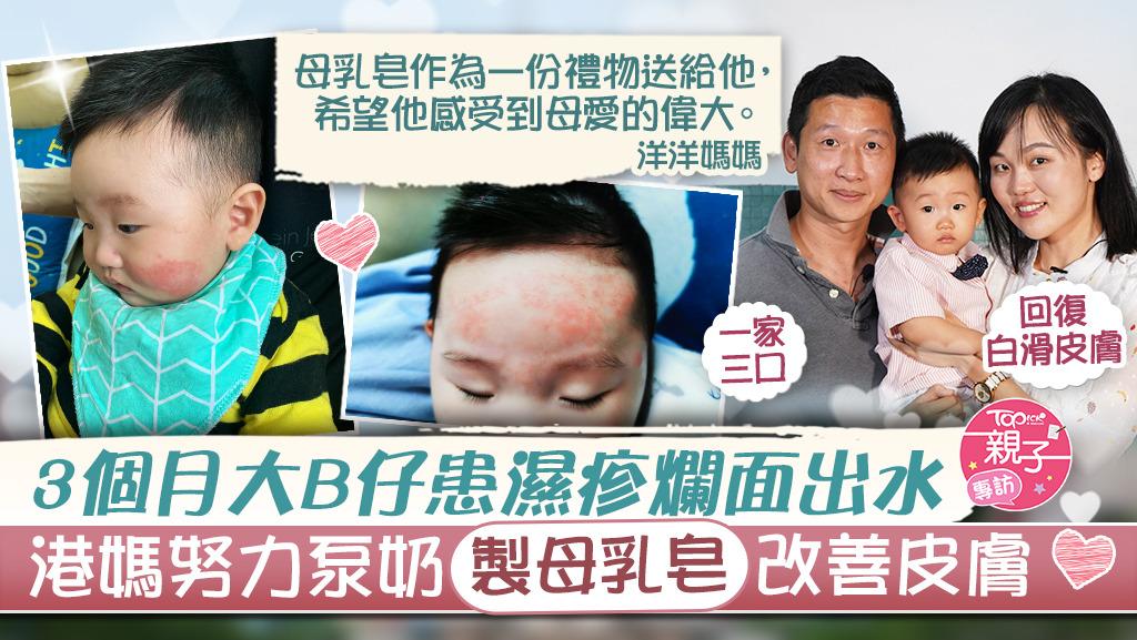 3個月大B仔患濕疹爛面出水,港媽努力泵奶製母乳皂改善兒皮膚。