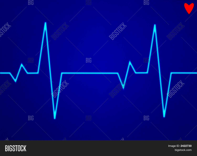Electronic Cardiogram Image Amp Photo Free Trial