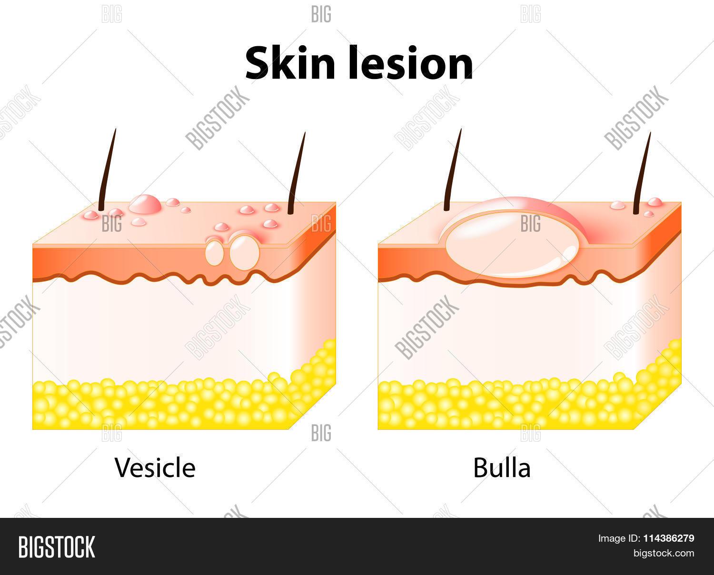 Vesicle Bulla Skin Lesion Vector Amp Photo