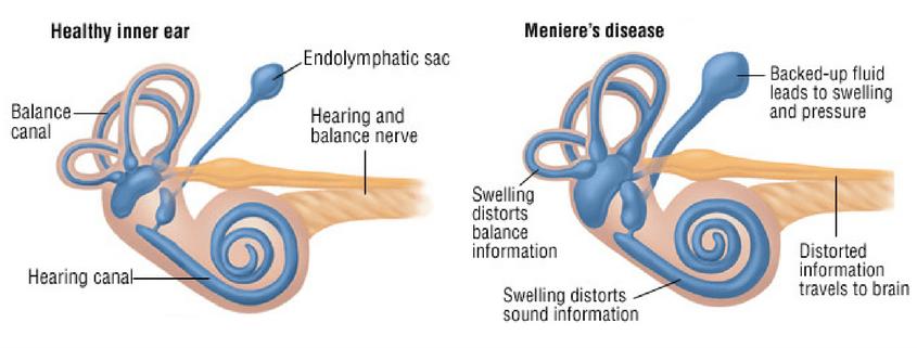 menieres-disease-inner-ear.png