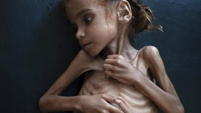 7-year old Amal Hussein, whose pictures amplified the tragedy of Yemen, succumbed to malnutrition in 2018 Credit: NYT