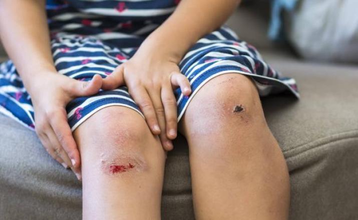 El jazmín cura las heridas|saludverdes.com