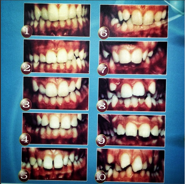 'A wall chart showing examples of various teeth conditions hangs inside a dental clinic in Pyongyang, North Korea.'