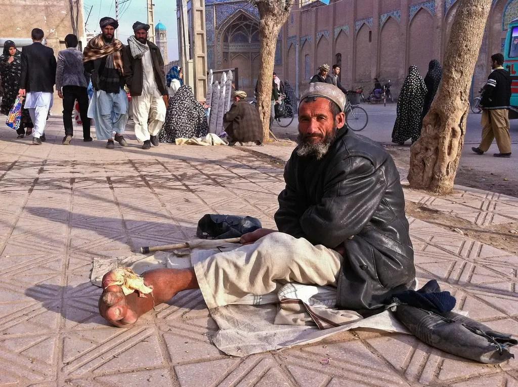 Este mendigo en Herat sufre de elefantiasis, que afecta a más de 120 millones de personas, principalmente en África y Asia Sur-Oriental