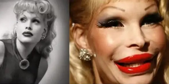 Amanda Lepore is a 44-year-old transgender model and recording artist. Her repeated anti-aging attempts left her looking like this.