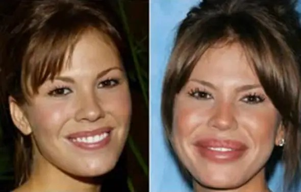 Television actress Nikki Cox was reported to undergo cheek and lip implants at just 34-years-old.