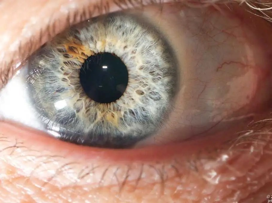 Weed can also turn your eyes red.