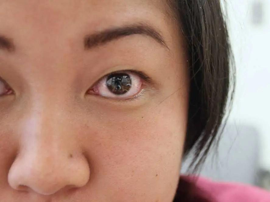 Bloodshot eyes sleep deprived