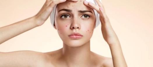 Risultati immagini per viso acne