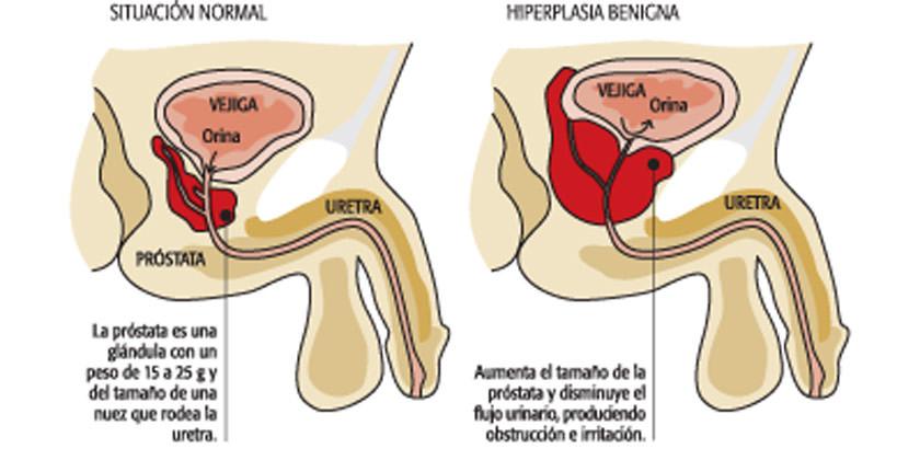 Hiperplasia benigna de próstata hiperplasia benigna prostat