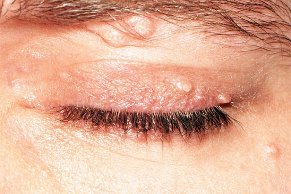 Fibromialgia e blefarite
