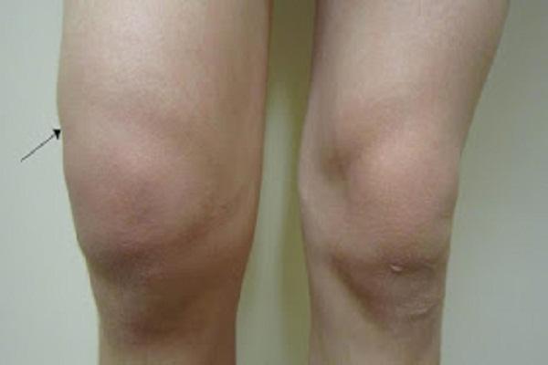 Gonflement de la fibromyalgie