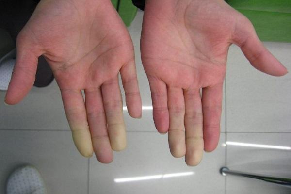 Síndrome de Raynaud y Fibromialgia