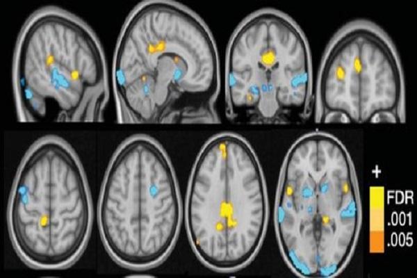 La fibromyalgie est une maladie qui échappe au diagnostic: l'intelligence artificielle peut-elle changer cela?