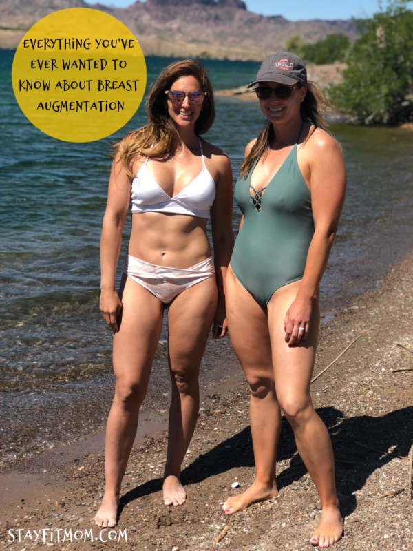 The Stay Fit Moms share their story and answer the FAQ of breast augmentation.