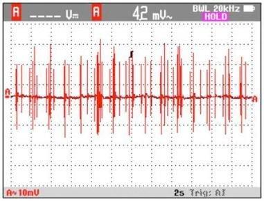 """""""Smartmålere"""" påvirker hjerterytmen"""