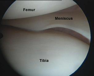 Arthroscopic view of knee