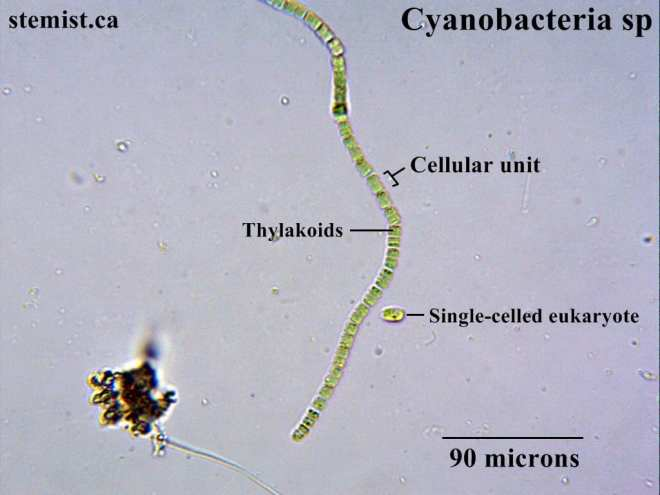 Above: Cyanobacteria at 400x. The individual cells form long chains.
