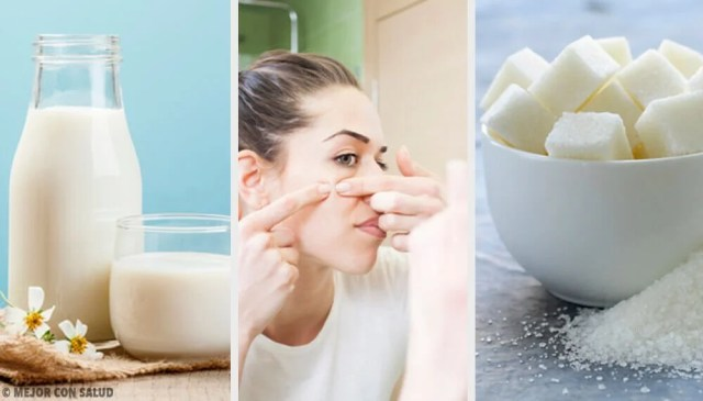 4 Face Masks To Remove Blemishes