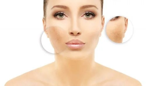 5 Reasons Why You Have Dark Spots On Your Face