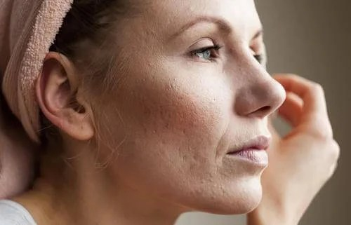 What Are Pores?