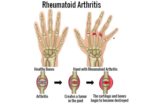 What Are The Triggers Of Rheumatoid Arthritis